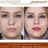 دکتر جراح بینی در اصفهان