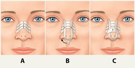 چسب بینی بعد از جراحی