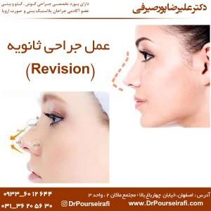 عمل جراحی ثانویه (Revision)