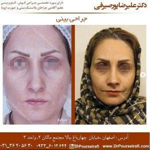 جراحی بینی در اصفهان 2