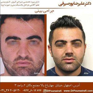جراحی بینی در اصفهان 3