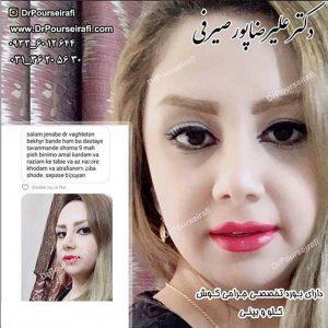 جراح بینی اصفهان 3