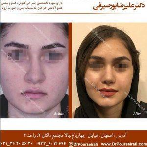 جراح بینی اصفهان 4