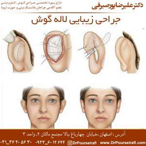 جراحی زیبایی لاله گوش 2