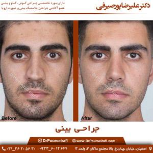 بهترین-جراح-بینی-در-اصفهان