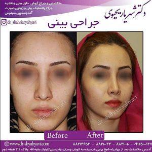 بهترین جراح بینی در اصفهان 4